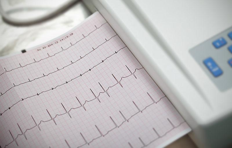 darstellung einer Kardiografie, Stressechokardiografie bei Jochheim Medizin