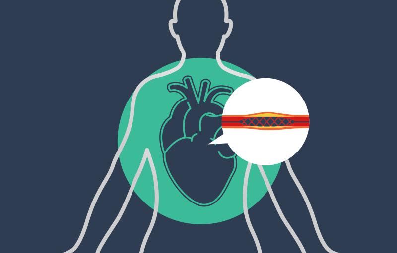 Illustration eines Stents zum Artikel: Jochheim Medizin an Studie zu Herzkatheteruntersuchungen beteiligt